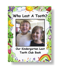 Who Lost a Tooth? Lost Tooth Book Templates